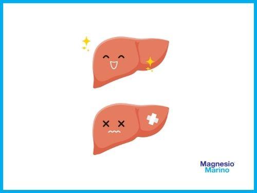 Immagini di un fegato felice e uno triste a causa dei cattivi zuccheri
