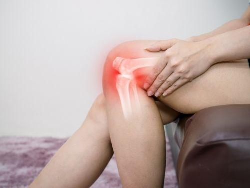 Donna soffre al ginocchio a causa dell'artrosi